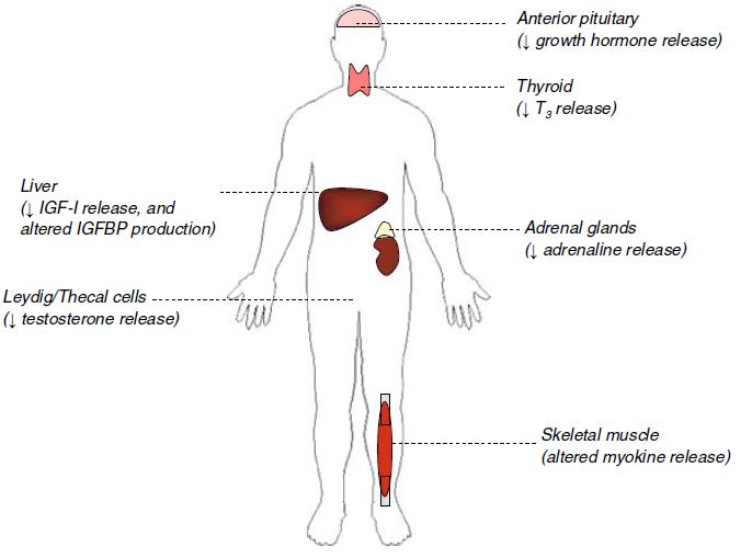 Sarcopenia y Hormonas. Una aproximación al problema.