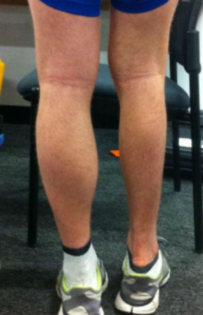 La atrofia muscular