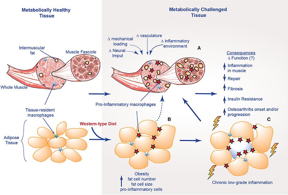 Tejido adiposo y tejido muscular en la inflamación crónica de bajo grado