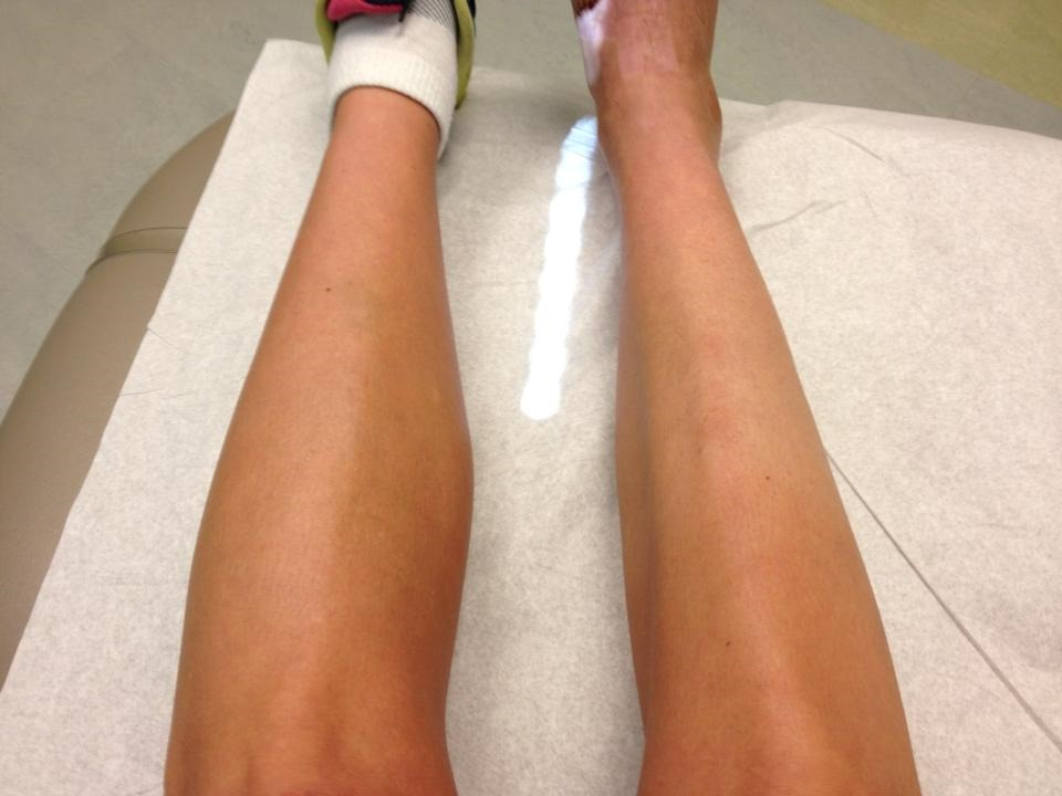 Atrofia muscular por desuso