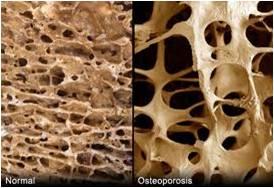 Osteoporosis: el ejercicio físico como aliado de tus medicamentos