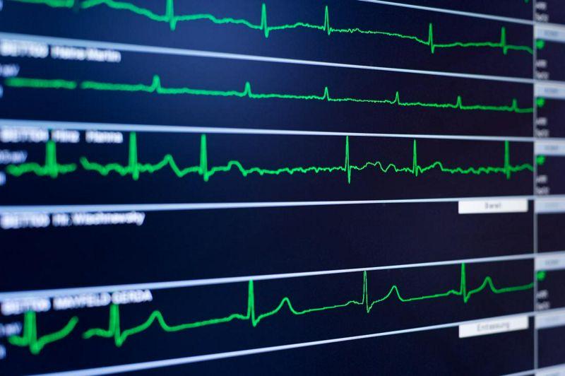 La Actividad Física espontánea mejora la Recuperación Cardíaca independientemente del Fitness