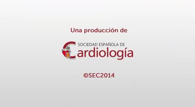 Compromiso con la Prevención Primaria y Secundaria (RHCV) de los Cardiólogos