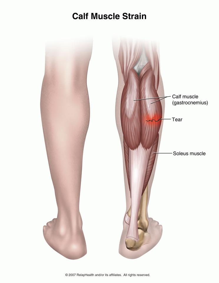 Artículo sobre las Lesiones musculares de gemelo vs sóleo: Como diferenciar y manejar las lesiones musculares de la pantorrilla