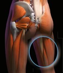 Lesión de la musculatura isquiosural