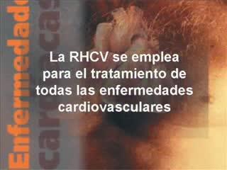 Video de Rehabilitación Cardiovascular para pacientes...