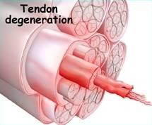 Artículo seleccionado sobre la fisiopatología en tendinopatías