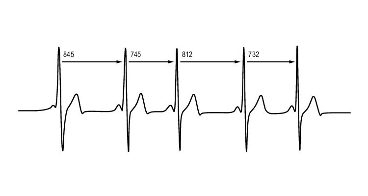 Cardiotacómetro como instrumento alternativo del ECG en el T4s