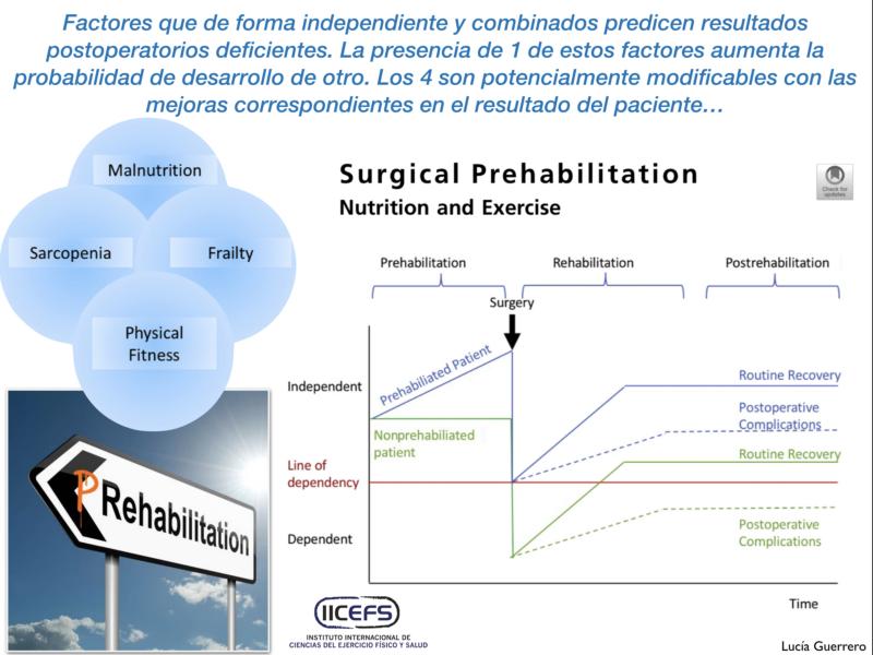 Estrategias basadas en ejercicio físico y nutrición: enfoque integrador en la Prehabilitación