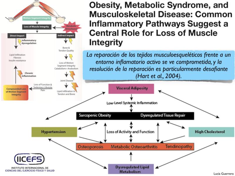 Obesidad, Síndrome Metabólico y Enfermedades del Sistema Musculoesquelético: Vías Inflamatorias Comunes
