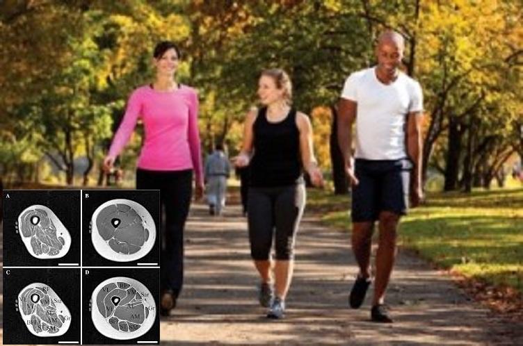 Los efectos de caminar diariamente sobre la acumulación de tejido adiposo intermuscular con la edad