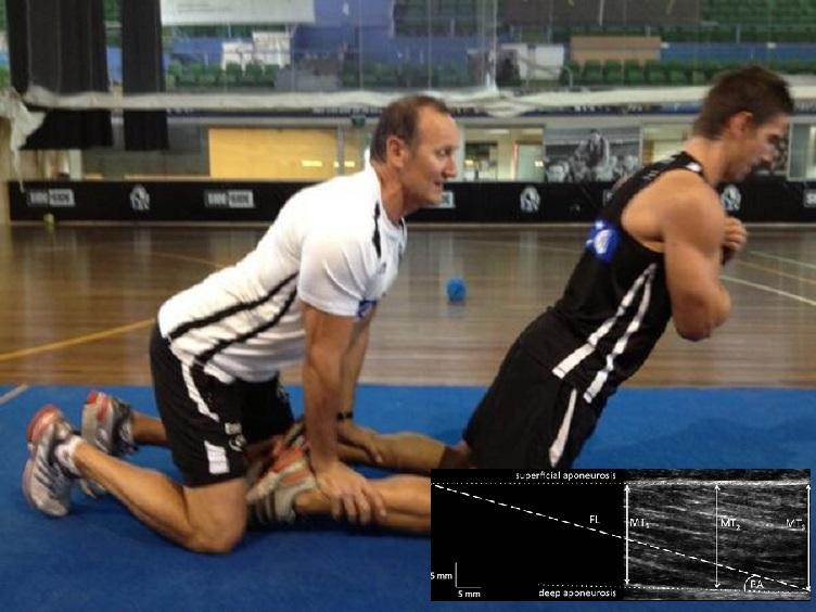 Cuatro semanas de ejercicio de isquiotibiales Nórdico reducen los factores de riesgo de lesión muscular en adultos jóvenes