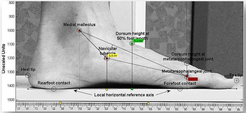 Imagen 9.- Mediciones tomadas mediante fotografía y el software BioGD: ADP - Altura del Dorso del Pie (verde), ND – Navicular Drop (amarillo) y el AAL-Ángulo del Arco Longitudinal (rojo).