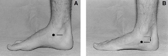 Imagen 12 y 13.- Navicular Drop (ND)