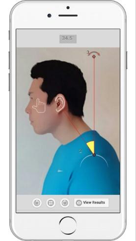Imagen 6. App Forward Head Posture (FHP)