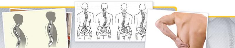 Taller de Ejercicio en Patologías y Alteraciones de la Columna Vertebral