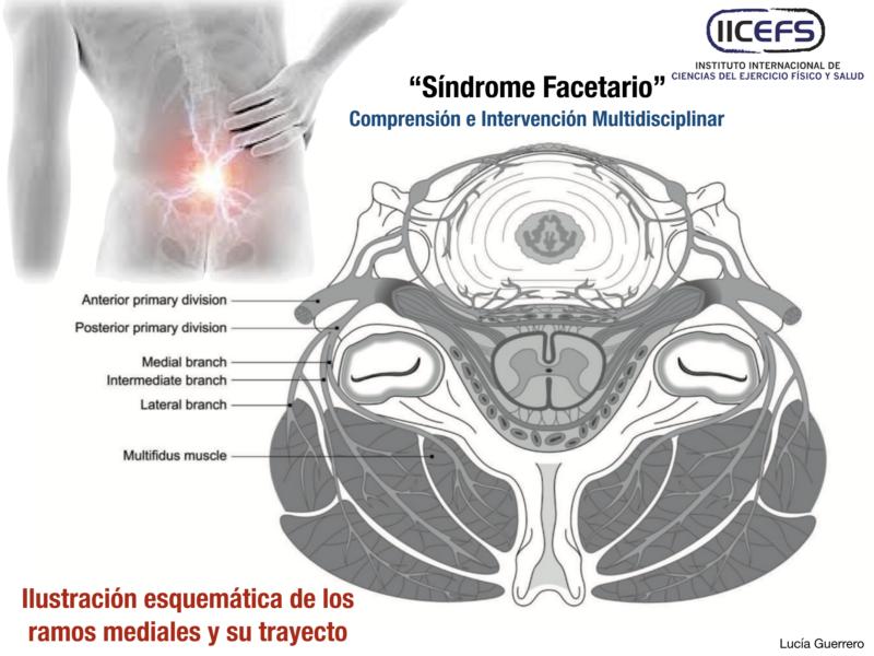 """""""Síndrome Facetario"""": Comprensión e Intervención Multidisciplinar"""