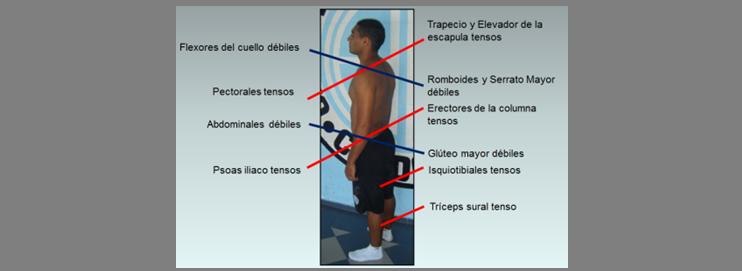 Evaluacion de la postura estática. Síndromes cruzados.