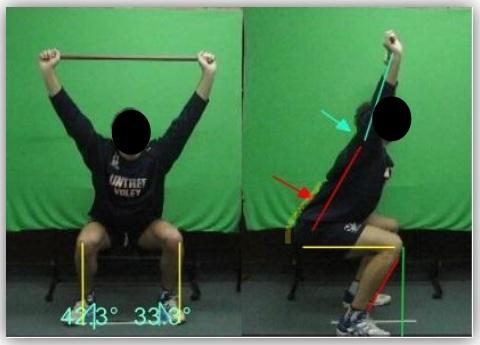 El uso del FMS (Functional Movement Screen) junto con la evaluación postural, como una simple herramienta para detectar riesgo de lesión y desbalances musculares en el voleibol (Parte I)