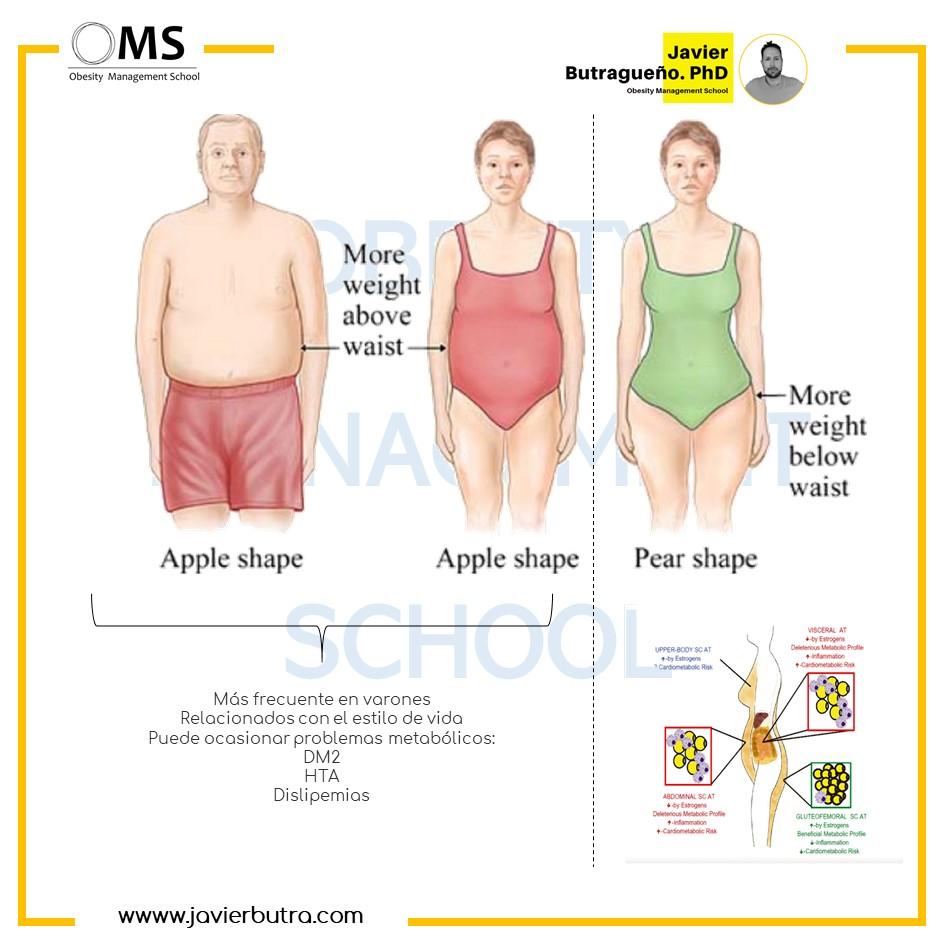 ¿Por qué los hombres acumulan grasa visceral abdominal?