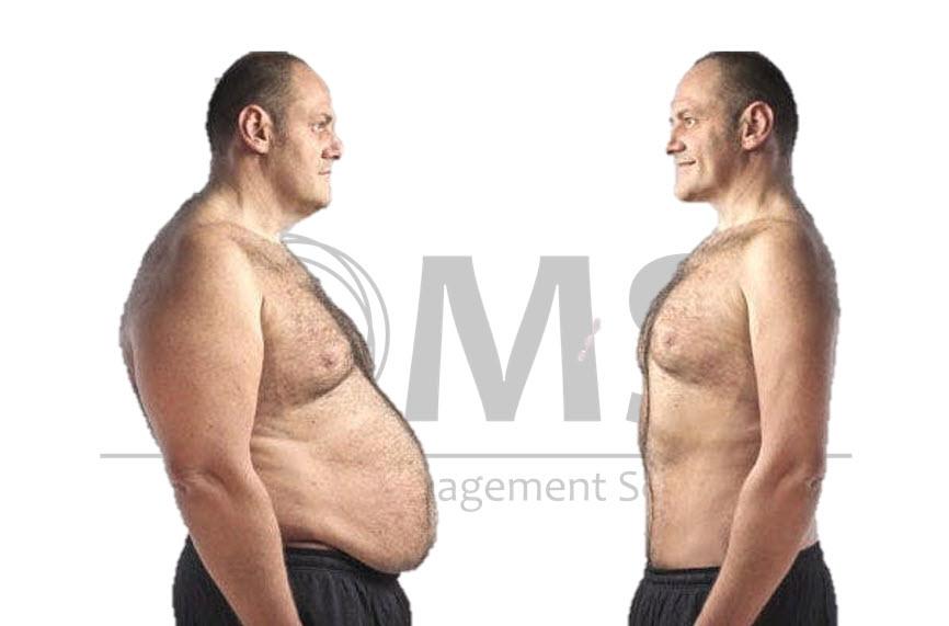 Influencia del índice de masa corporal y el sexo en los cambios regionales de grasa en una intervención de pérdida de peso.