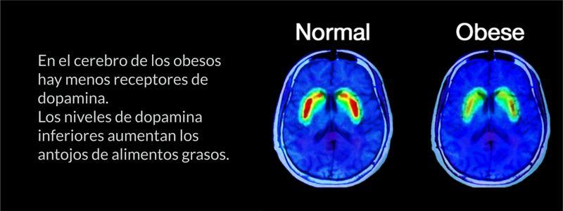Mecanismos cerebrales de la Obesidad; Neurociencias para la Actividad Física.