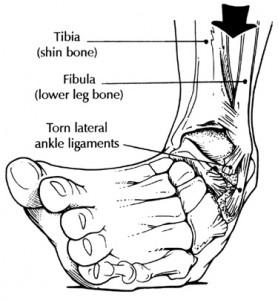 Articulo de revisión sobre el conocimiento actual en lesiones ligamentarias de tobillo