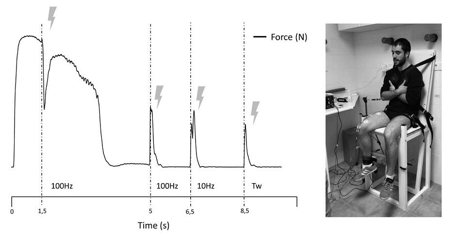Entrenamiento de la fuerza al fallo vs no al fallo: marcadores agudos y retrasados de fatiga mecánica, neuromuscular y bioquímica