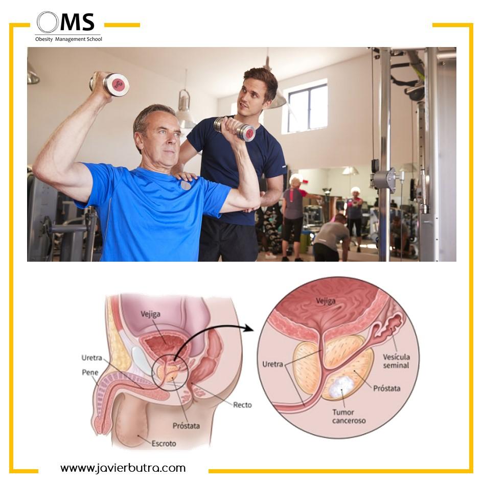 ¿Cuál es la dosis mínima para la efectividad del ejercicio de fuerza en pacientes con cáncer de próstata? Revisión sistemática