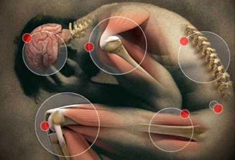 Evidencias para la prescripción de ejercicio físico en pacientes con fibromialgia