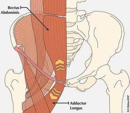 Artículos sobre Hallazgos del  diagnóstico por imágenes en pubalgia y sport hernia