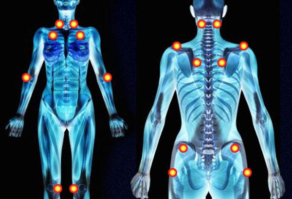 Programa de actividad física en pacientes con fibromialgia: revisión sistemática