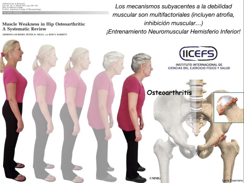 Debilidad Muscular en el abordaje de la Osteoartritis de Cadera