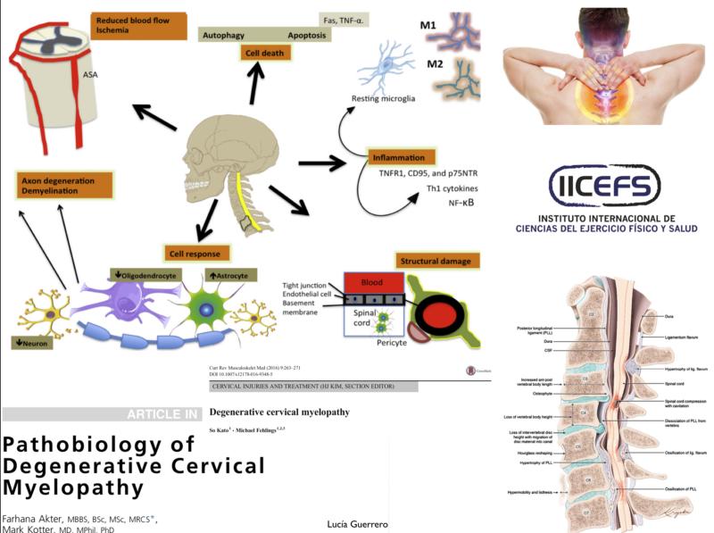 Introducción a la Mielopatía Cervical Degenerativa: Retos hacia el manejo óptimo
