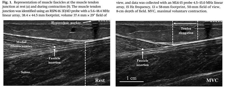 La velocidad de la unión músculo-tendón es sexo-dependiente y no es alterada con el estiramiento estático agudo