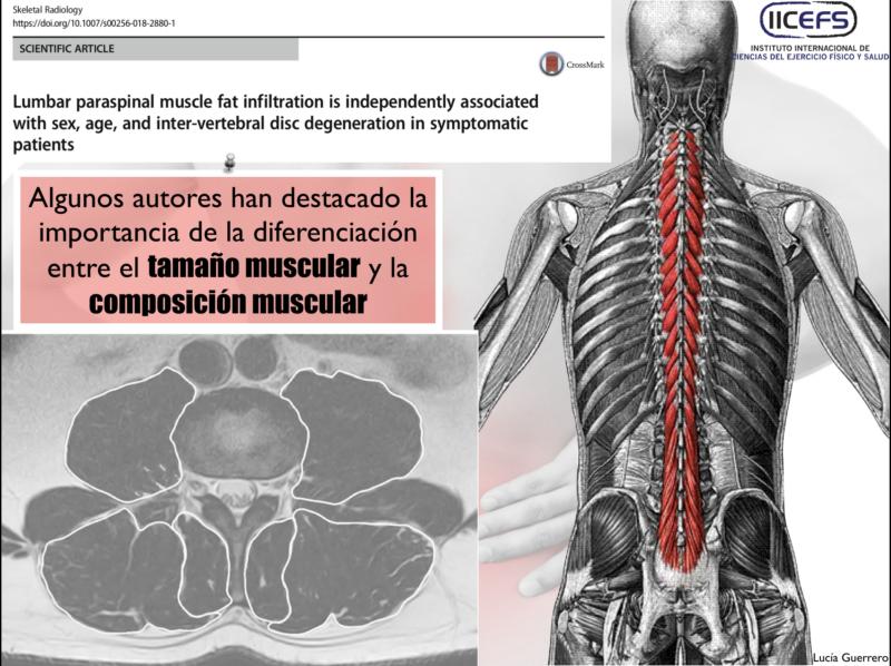 Tamaño, Composición muscular y Dolor Lumbar
