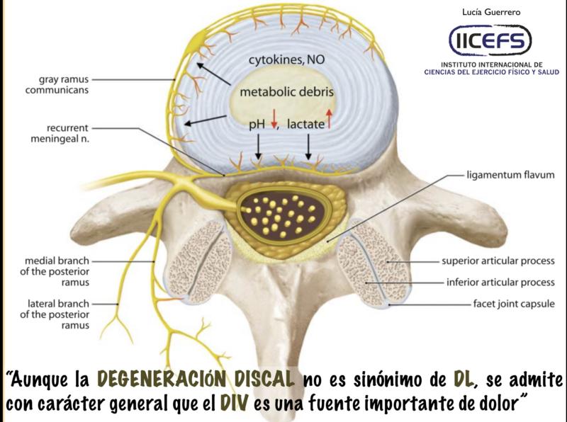 Degeneración DIV: Dolor de Espalda Discogénico