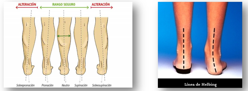 Imagen 7 y 8.- Ángulo de la articulación Tibio-Calcánea (ATC) y línea de Helbing.