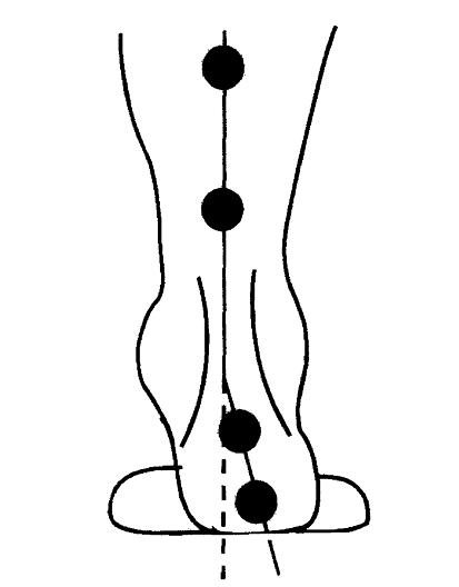 Imagen 17.- Medición del ángulo posterior del retropié.