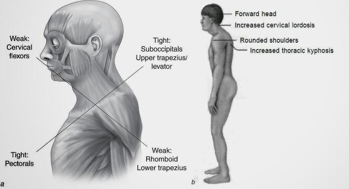 Imagen 4. Síndrome Cruzado Superior descrito por Janda